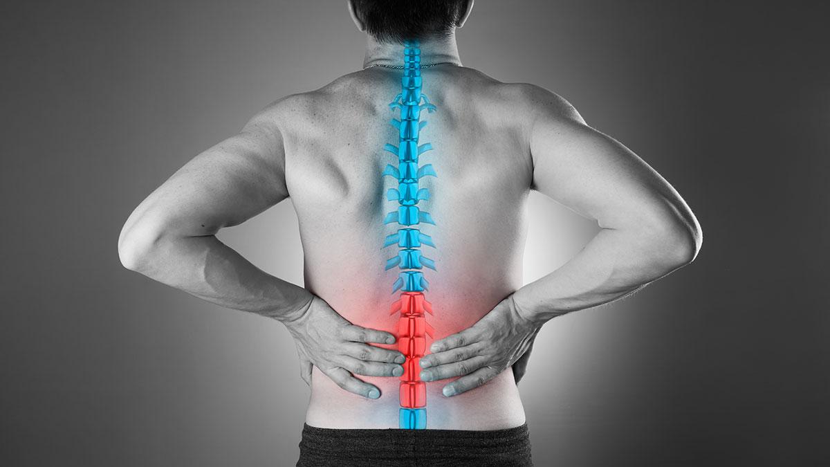 Przepuklina dysku kręgosłupa, jej objawy i leczenie