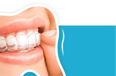 Korekta zgryzu w Nowym Jorku: Invisalign, aparaty ortodontyczne, stałe i wyjmowane, na Greenpoincie