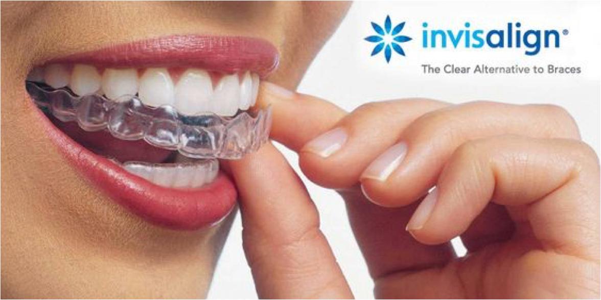 Polski dentysta zaprasza na leczenie ortodontyczne do Clifton w NJ