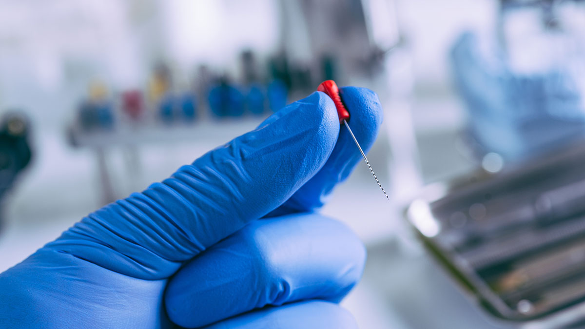 Leczenie kanałowe. Co to jest? Wyjaśnia polski endodonta Doktor Cezary Mitrut
