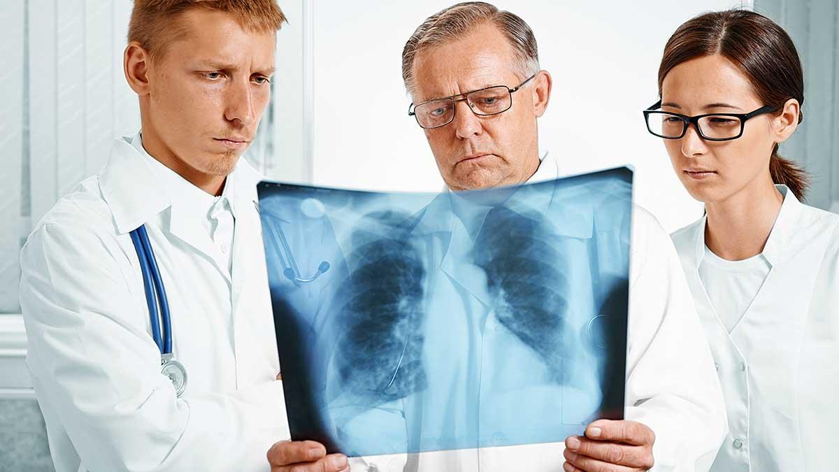 Odpowiedzialność pracodawców w Nowym Jorku za zawodowe choroby płuc pracowników
