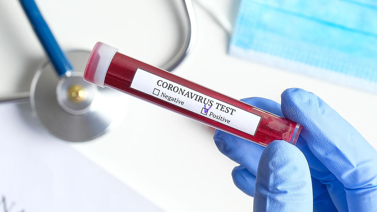 Przypadek zarażenia nowym typem koronawirusa w Hongkongu