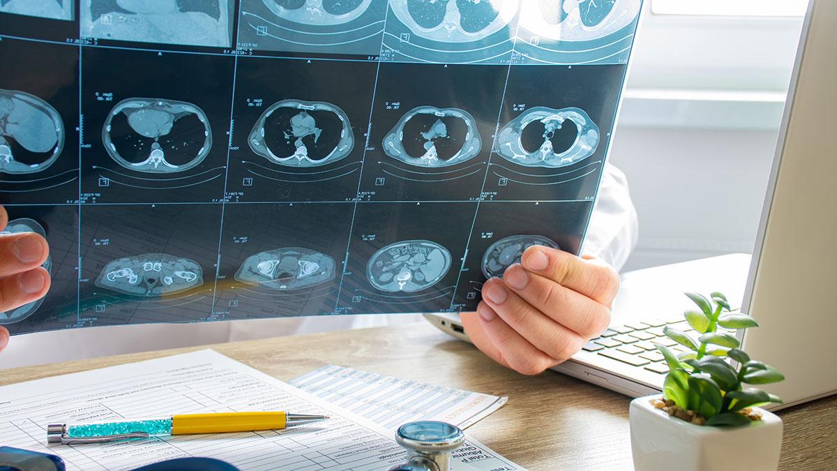 Odszkodowania za choroby płuc, pylicę i nowotwory, wywołane przez azbest