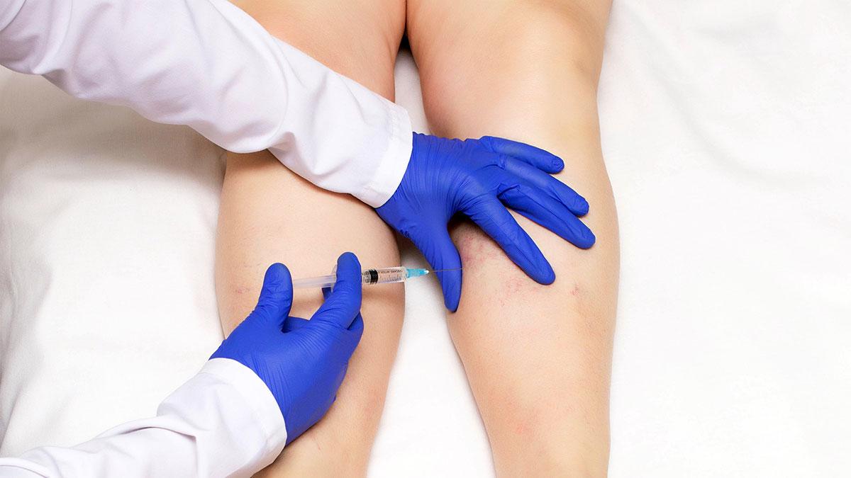 Skleroterapia - leczenie żylaków (pajączków) kończyn dolnych