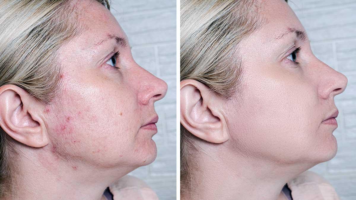 What are Venus Viva™ Skin Treatments?